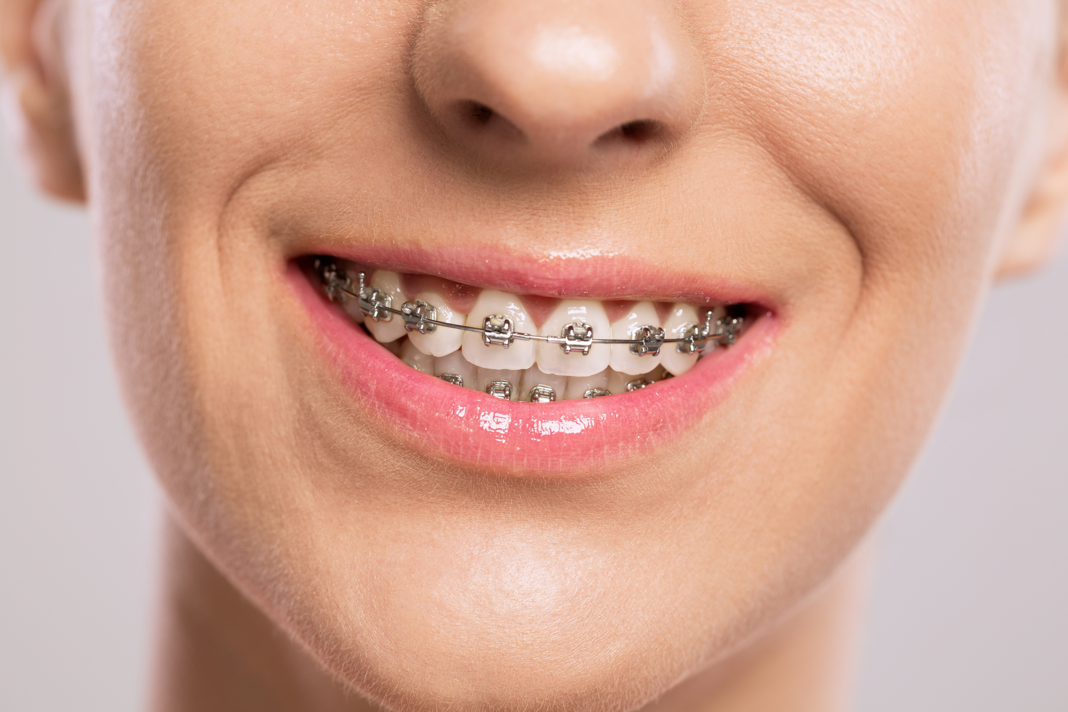 Os problemas da falta de higiene apropriada se multiplicam com o aparelho nos dentes. Veja dicas para melhorar os cuidados com a saúde bucal!