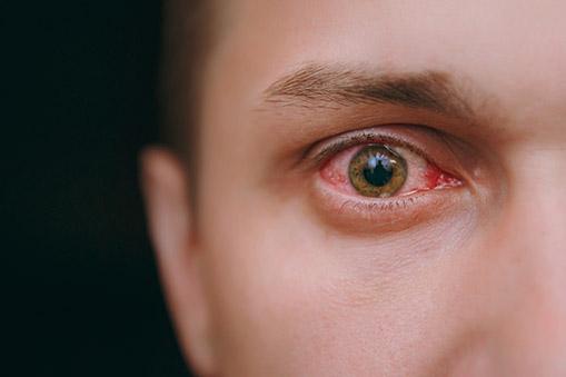 Os olhos são responsáveis por traduzir para o cérebro cerca de 80% das informações que recebemos. Saiba mais sobre as alergias e infecções nos olhos.