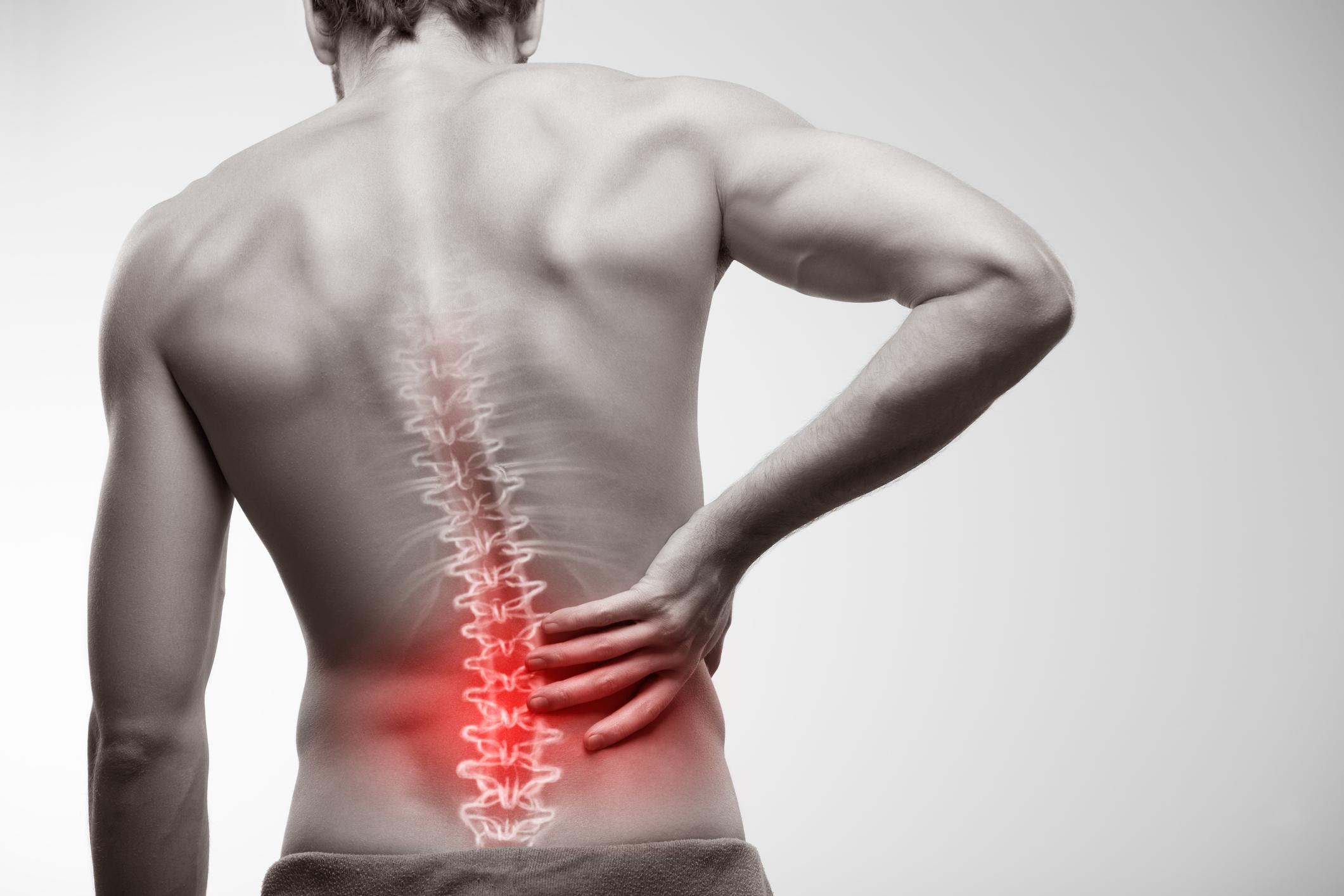"""Muitas vezes começamos a sentir dores na coluna e uma das causas pode ser o """"Bico de Papagaio"""". O corpo vai se ajustando e, com isso, é normal que apareçam algumas complicações em nossa estrutura óssea."""